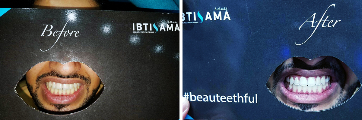 Before and after teeth whitening session with ibtisama