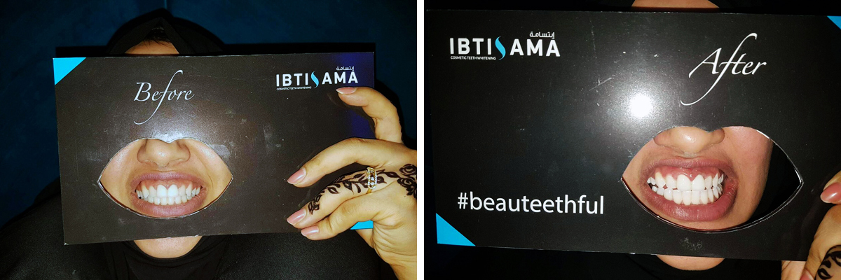 Before and after a teeth whitening session with ibtisama lounge in abu dhabi mall