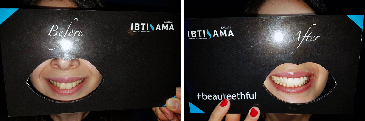 Before and after a teeth whitening session with ibtisama lounge in abu dhabi marina mall