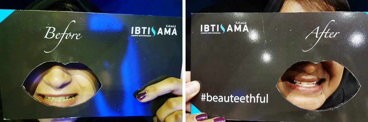 Before and after a natural teeth whitening session with ibtisama beauty