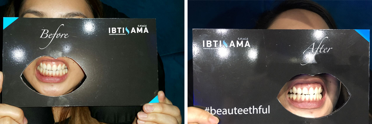 Results of teeth whitening session with ibtisama beauty in abu dhabi - home service teeth whitening services available across UAE