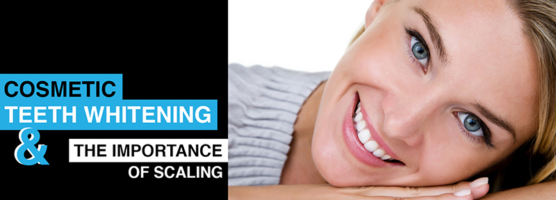 Cosmetic Teeth Whitening and the importance of scaling